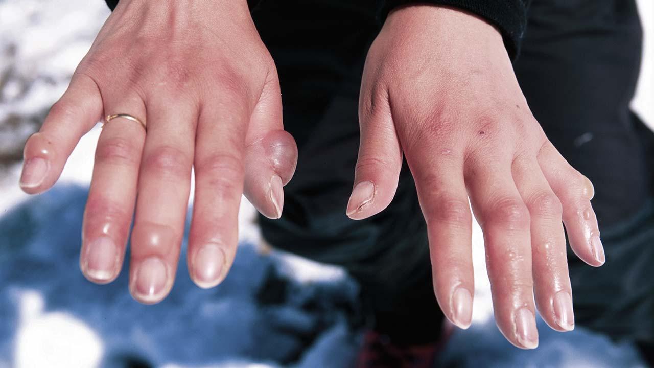 soğuktan donmuş eller
