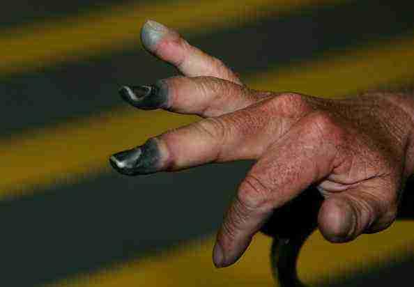 donmuş parmaklar