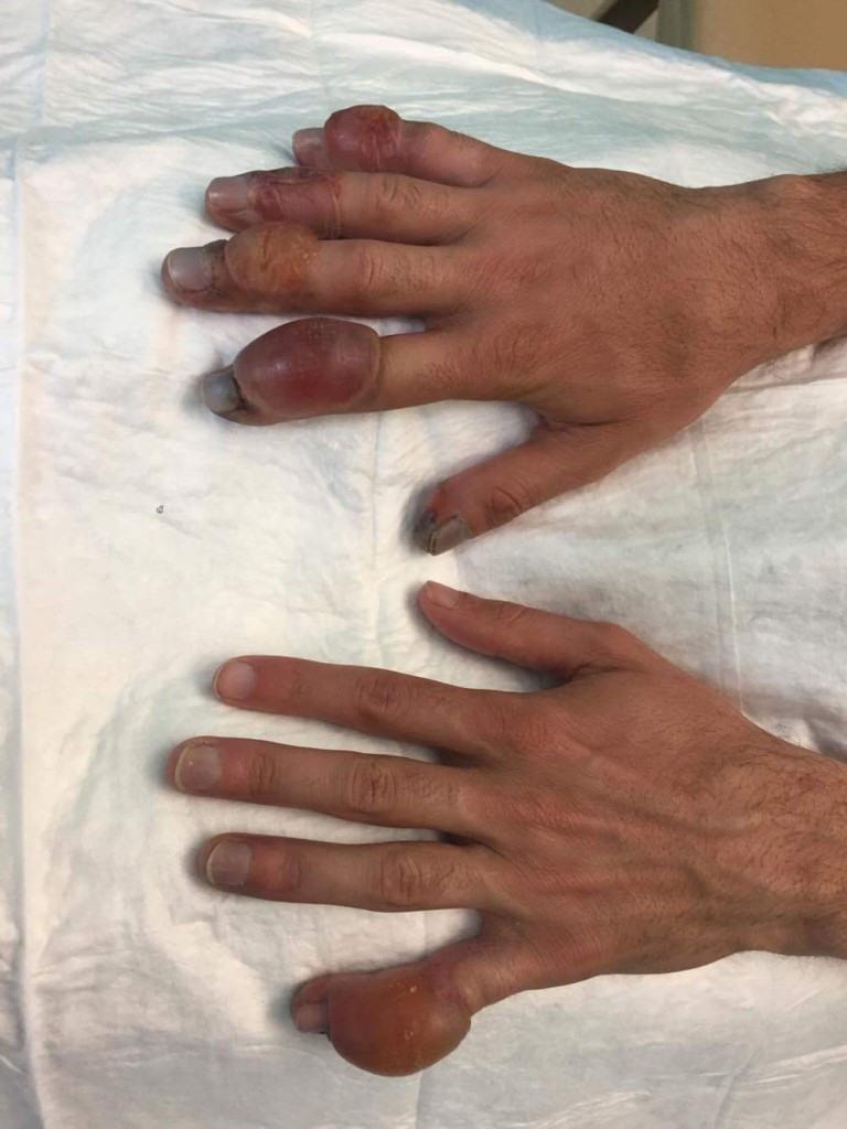 donmuş el parmakları