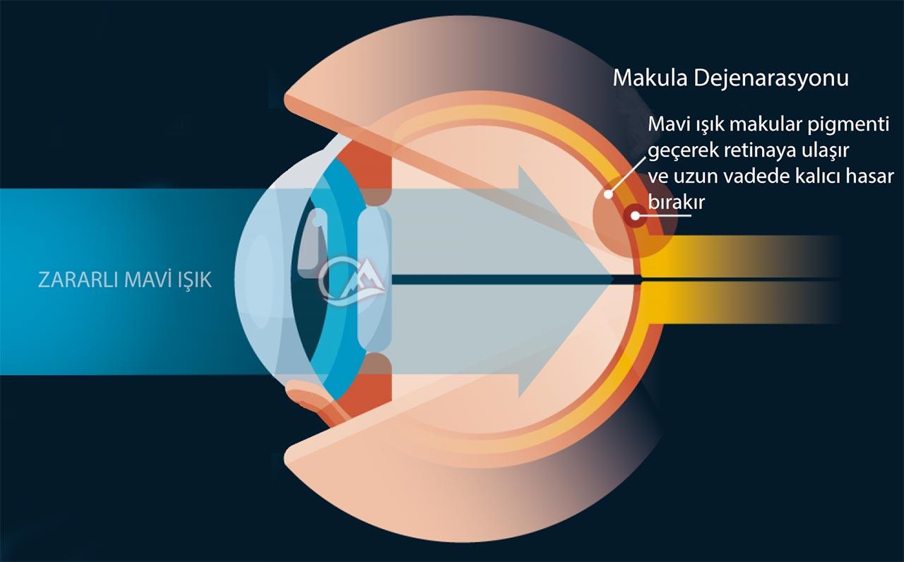 monitörlerden gelen mavi ışığın gözlere zararı